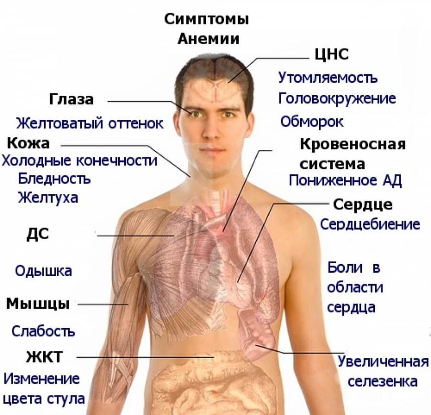 Симптомы, классификация и разновидности анемии