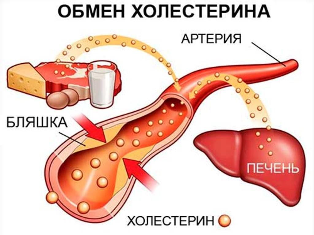 влияние холестерина на образование атеросклеротической бляшки