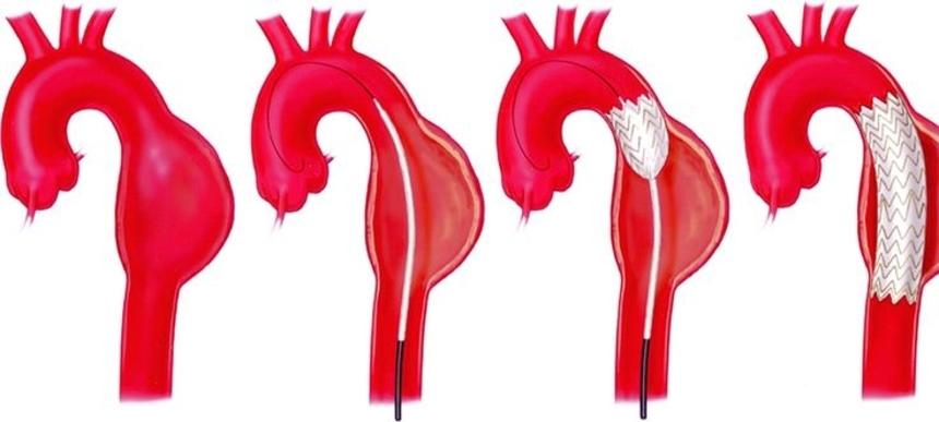 Эндоваскулярное протезирование аневризмы грудной аорты