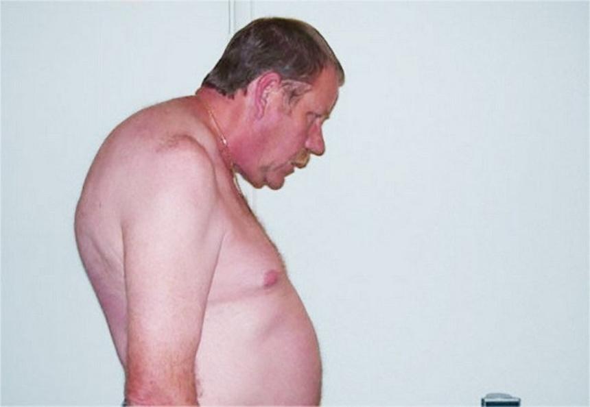 Симптомы болезни Бехтерева - хроническая сутулость