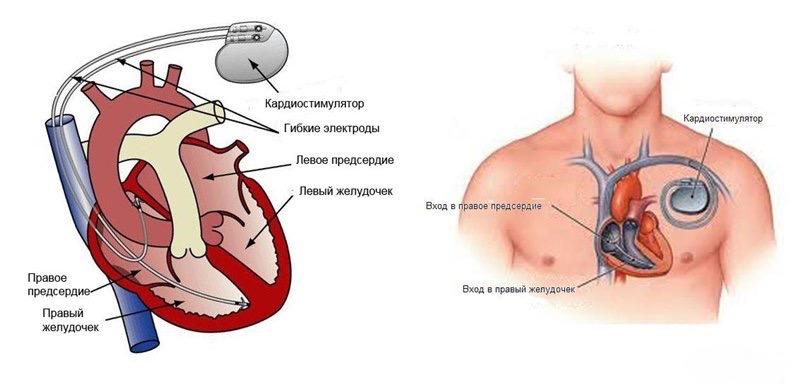 лечение аритмии: имплантация электрокардиостимулятора
