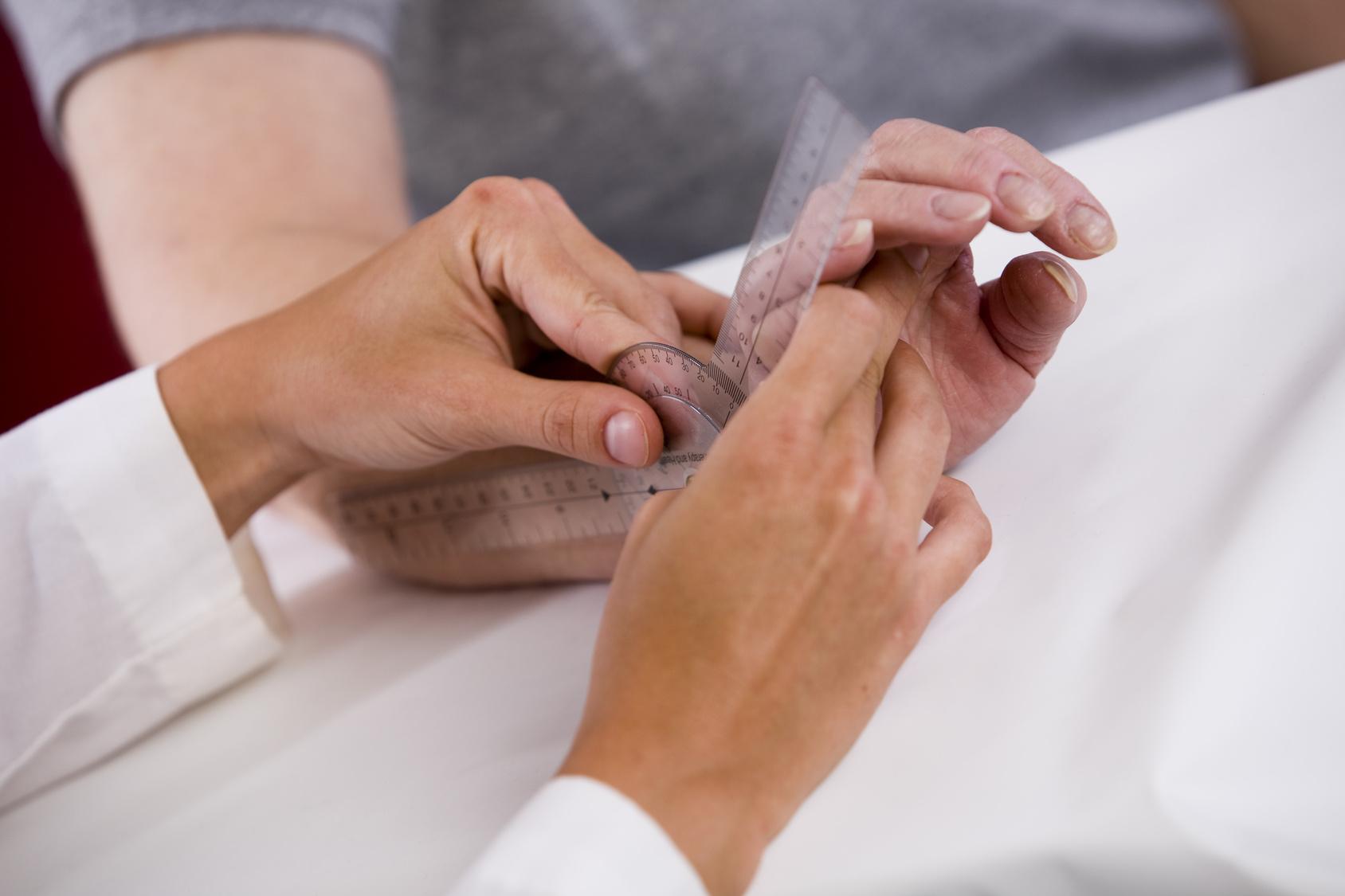 диагностика артрита, осмотр ревматолога