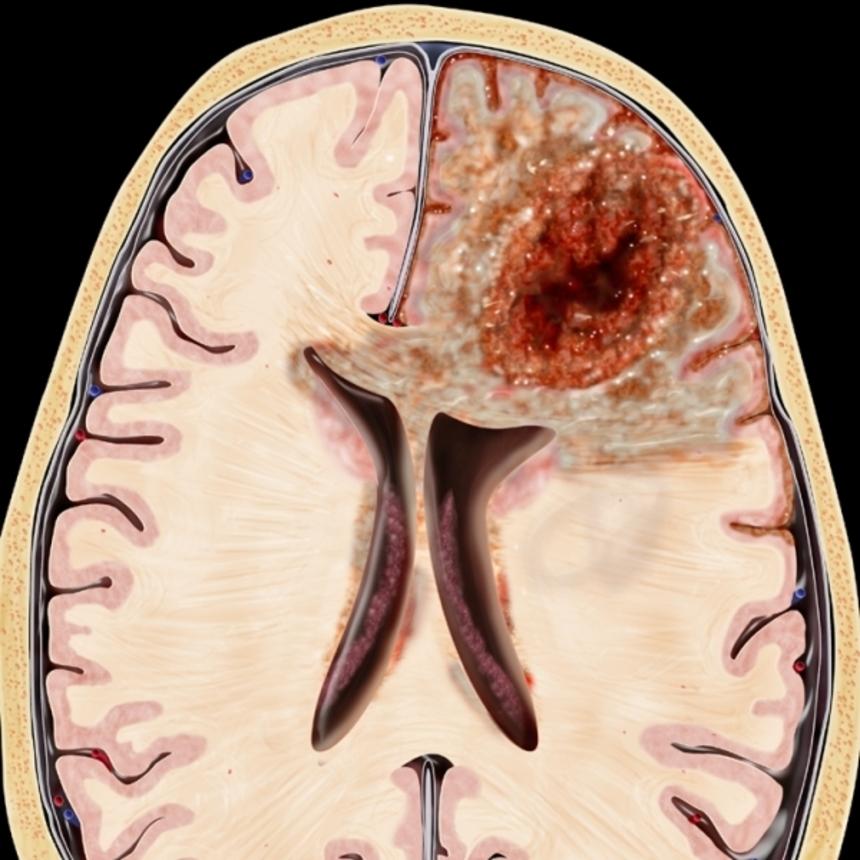 Il glioblastoma noto anche come glioblastoma multiforme o con la sigla GBMmeno comunemente come glioblastoma polimorfo è il tumore più comune e più maligno tra