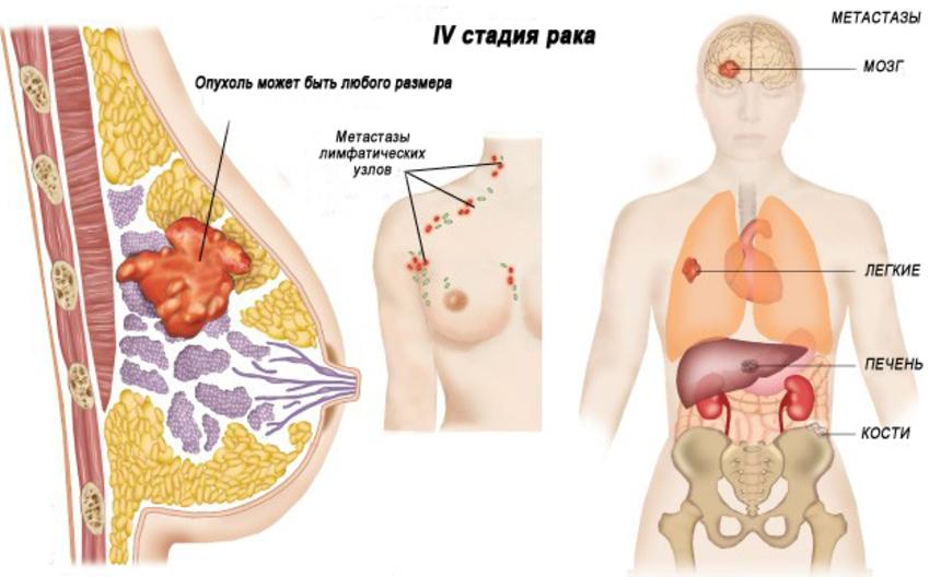 Симптомы 4 стадии рака груди: опухоль гигантских размеров