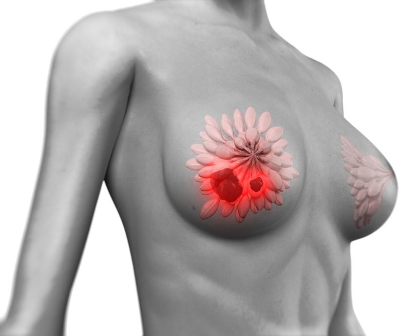 Что такое рак груди