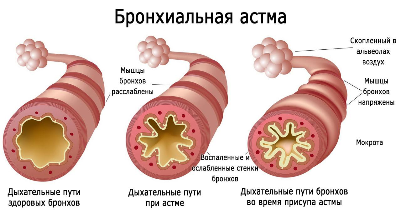 Бронхиальная астма у детей: симптомы, признаки, причины. Как лечить бронхиальную астму
