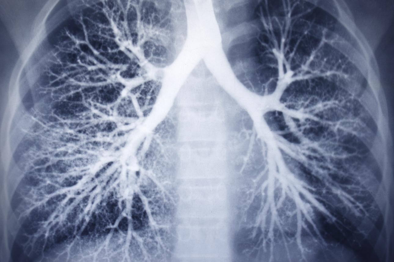 диагностика бронхита, рентгенография (бронхография) легких