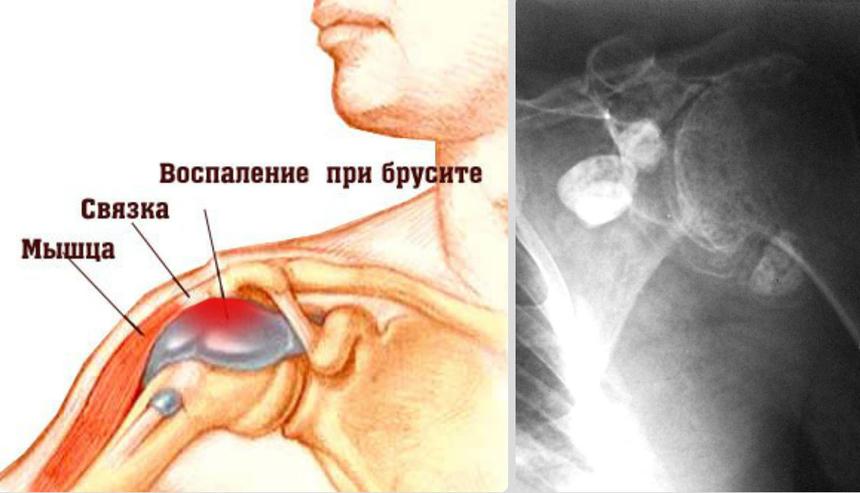 Сумки плечевого сустава причины возникновения боли и способы лечения