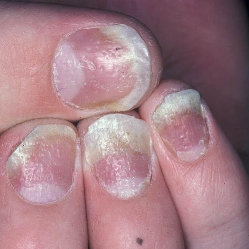 Кандидоз, или грибок, ногтей