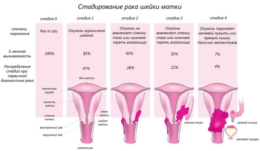 Симптомы и стадии рака шейки матки