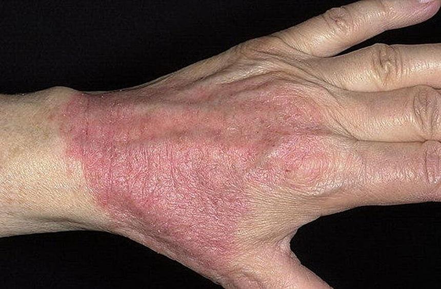 Разновидности и симптомы дерматита: атопический дерматит