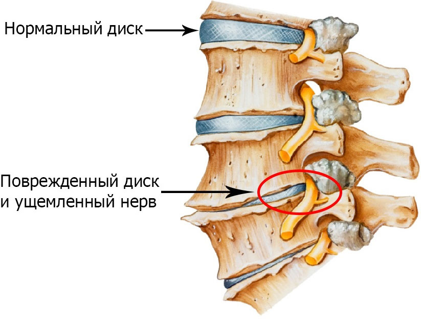 Как развивается грудной остеохондроз