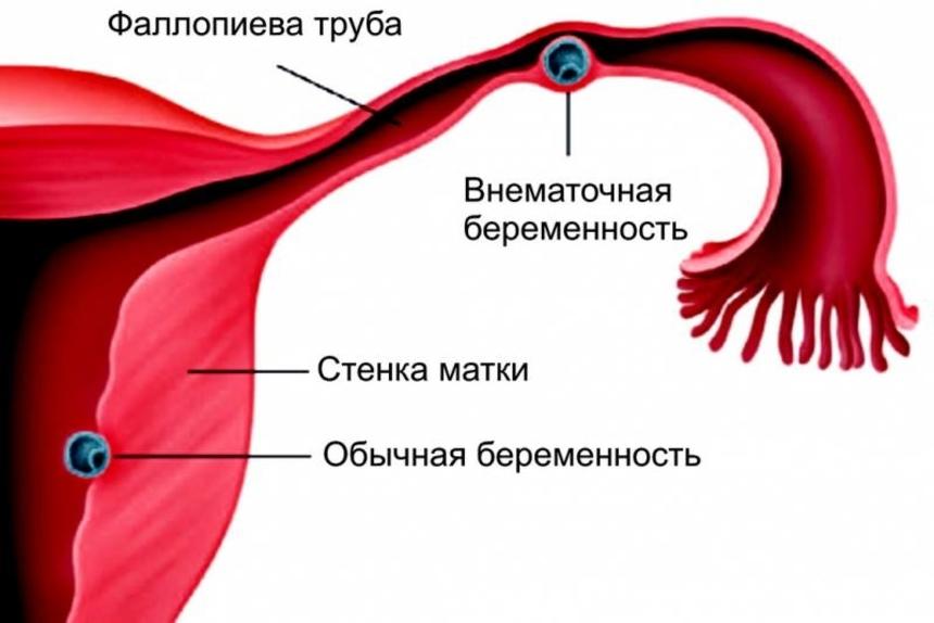 Внематочная беременность в картинках