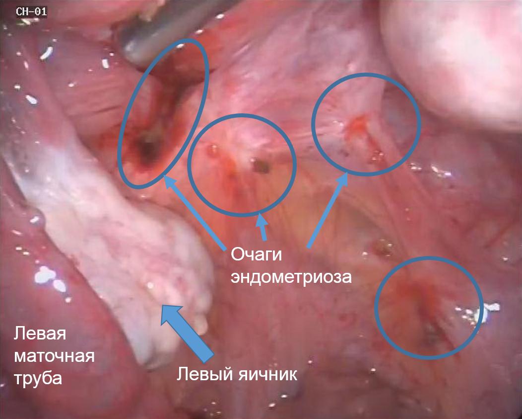 диагностика эндометриоза, фото