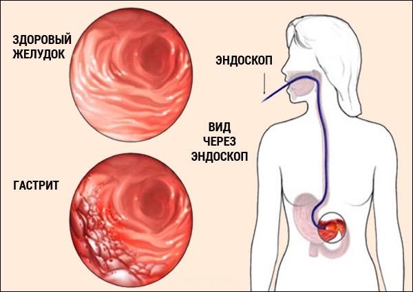 диагностика гастрита, фиброгастроскопия