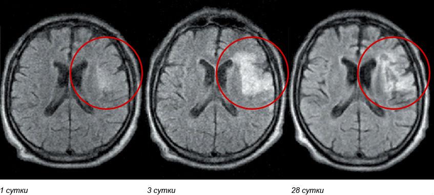 диагностика геморрагического инсульта, МРТ