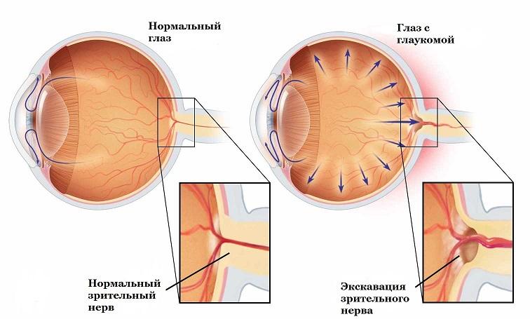 Глаукома - заболевание глаз: симптомы, фото, лечение, операция