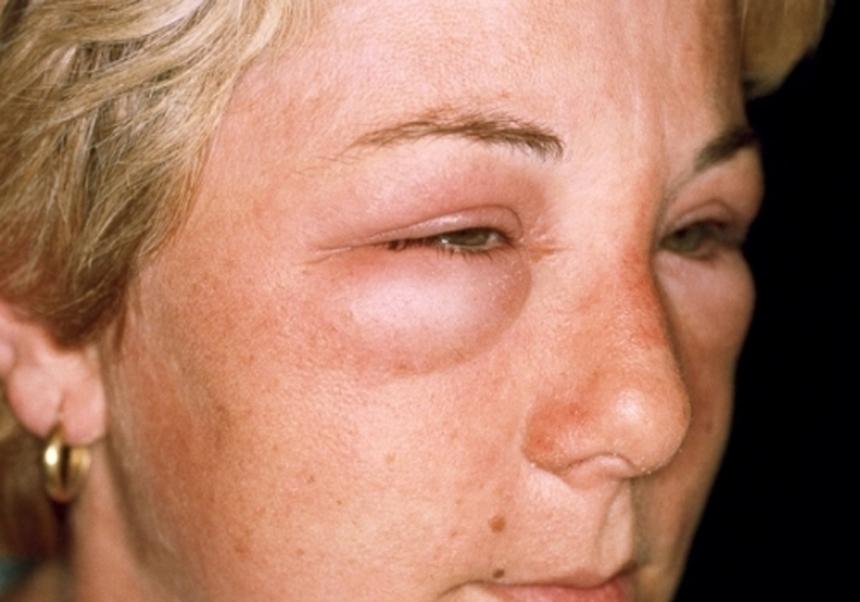 Симптомы и формы гломерулонефрита: отеки лица