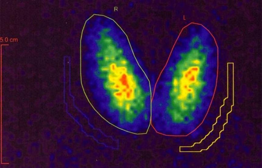Диагностика зоба: радиосцинтиграфия щитовидной железы