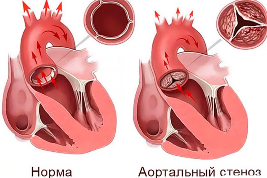 Артальный порок: аортальный стеноз