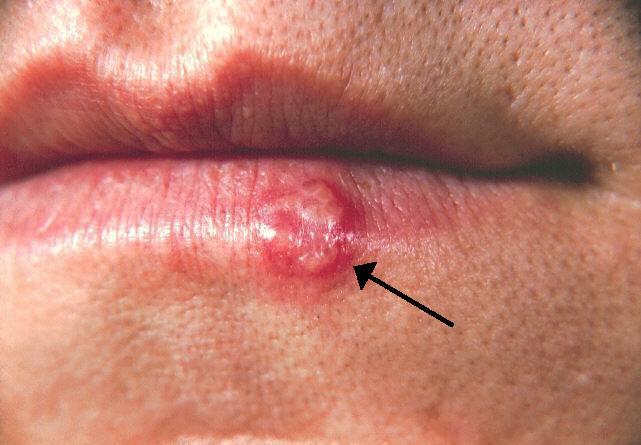 герпес на губах, симптомы