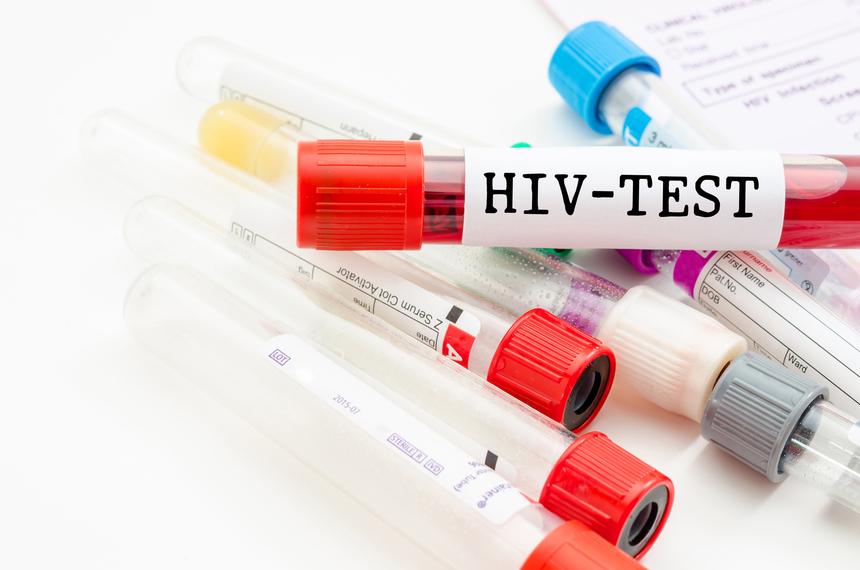 Диагностика ВИЧ-инфекции: тест на ВИЧ