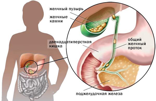 калькулезный холецистит, или желчекаменная болезнь