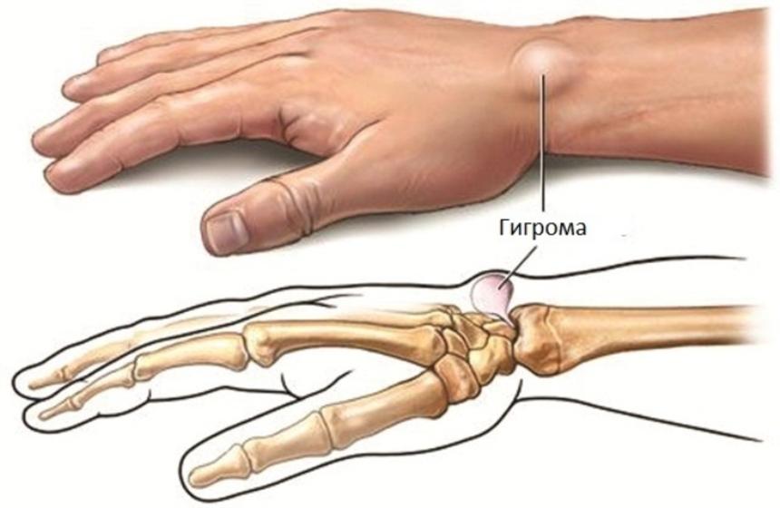 Гигрома сустава, причина, лечение постановка согревающего компресса на суставы