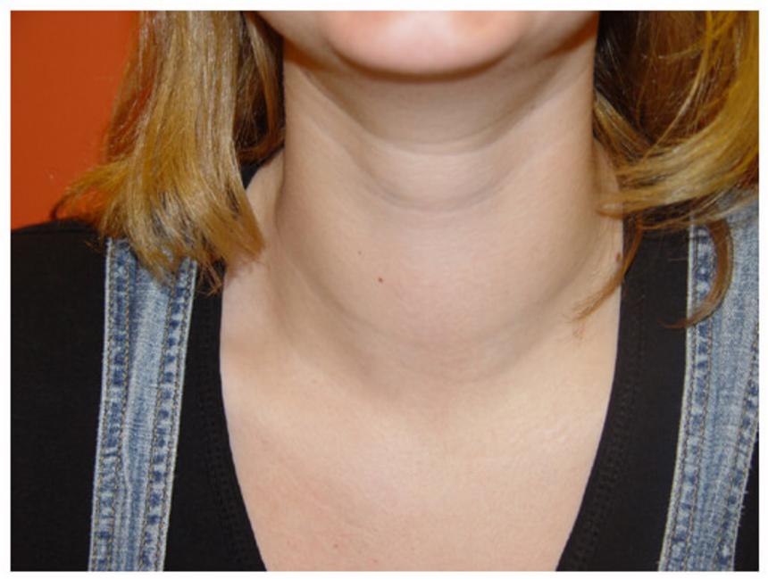 Симптомы гипертиреоза: увеличение щитовидной железы