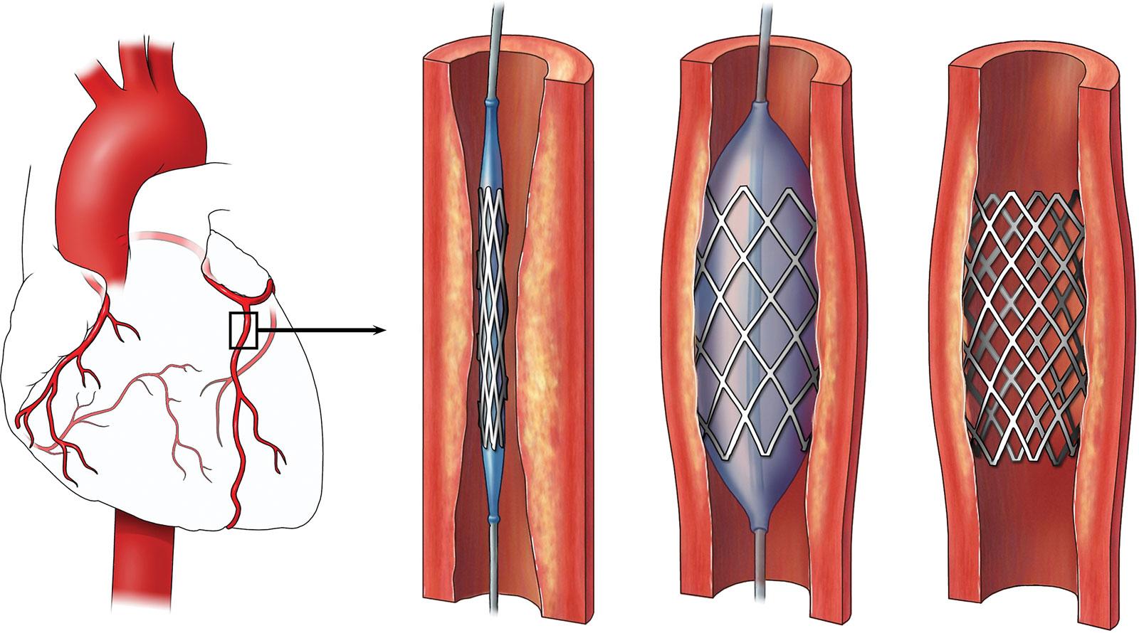 лечение инфаркта миокарда, баллонная ангиопластика и стентирование коронарной артерии