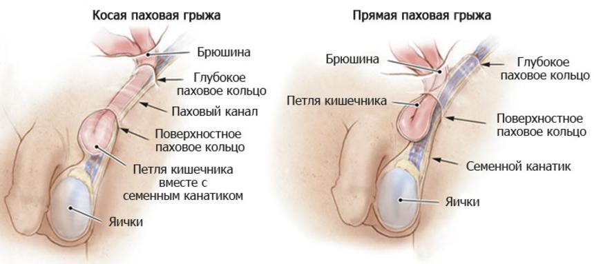 Разновидности паховой грыжи: косая и прямая