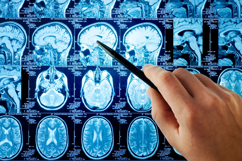 диагностика инсульта, МРТ