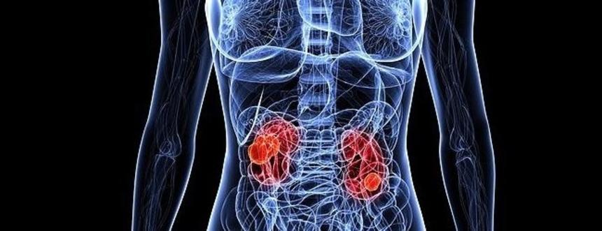 Что такое рак почки