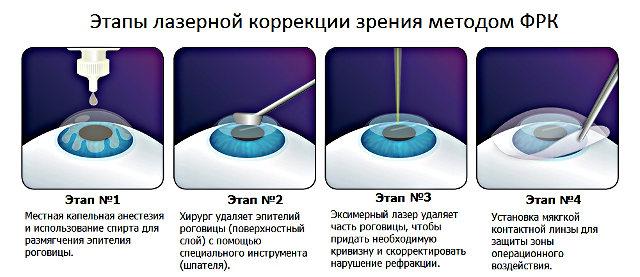 что такое Фоторефракционная (рефрактерная) кератэктомия (ФРК)