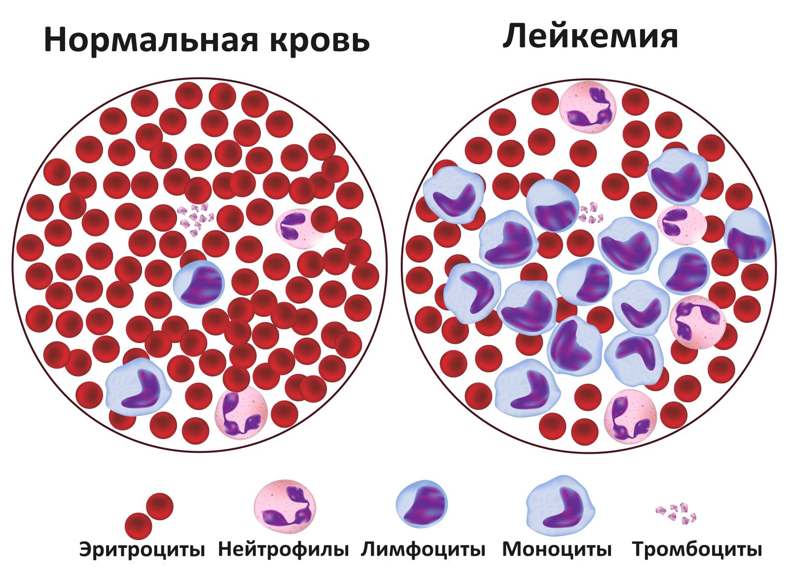 Лейкемия: симптомы причины диагностика лечение, виды лейкоза