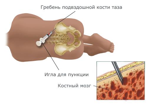 диагностика лейкемии, пункция костного мозга