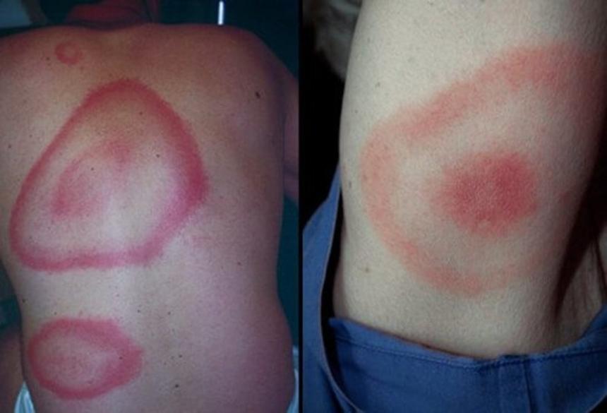 Симптомы болезни Лайма - кольцевидная эритема