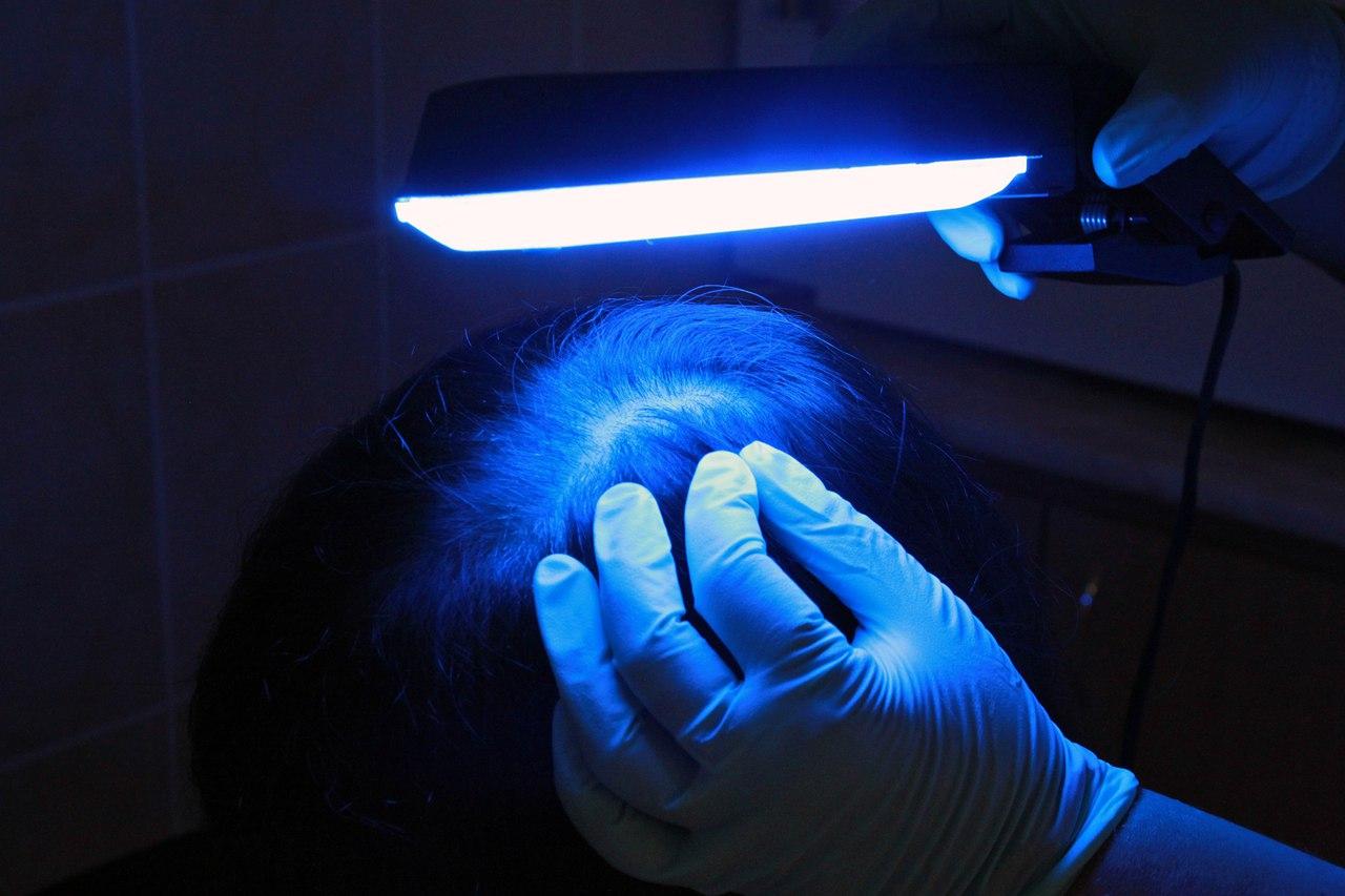 Диагностика лишая лампой Вуда