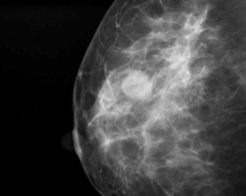 Диагностика мастопатии: маммография