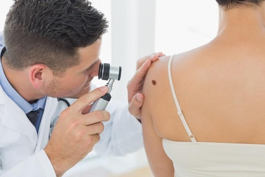 Диагностика меланомы: дерматоскопия