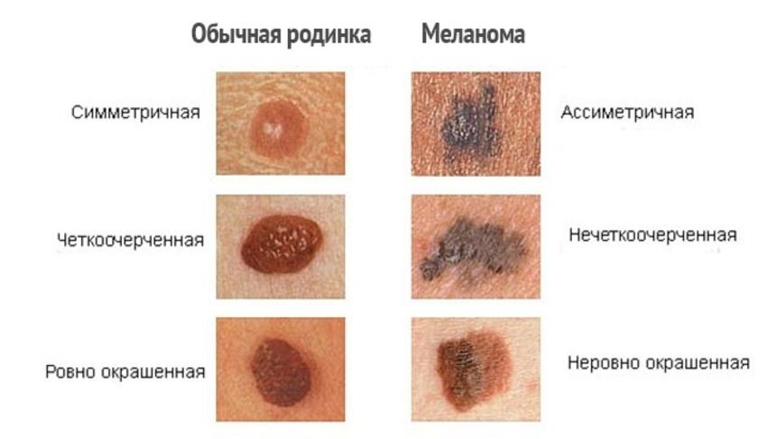 Классификация и симптомы меланомы: отличия меланомы от родинки