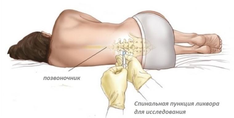Диагностика менингита: спинномозговая пункция