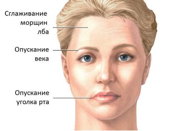 осложнение невралгии тройничного нерва: парез мышц лица
