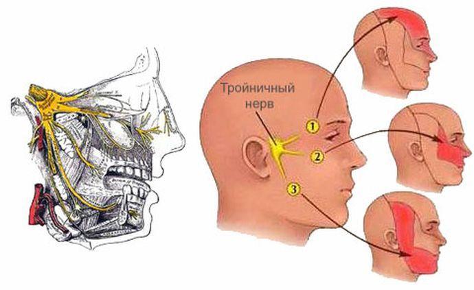 невралгия тройничного нерва