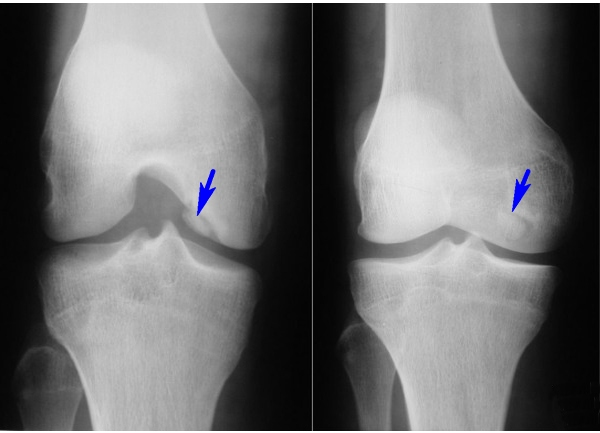 диагностика остеоартроза, рентгенография