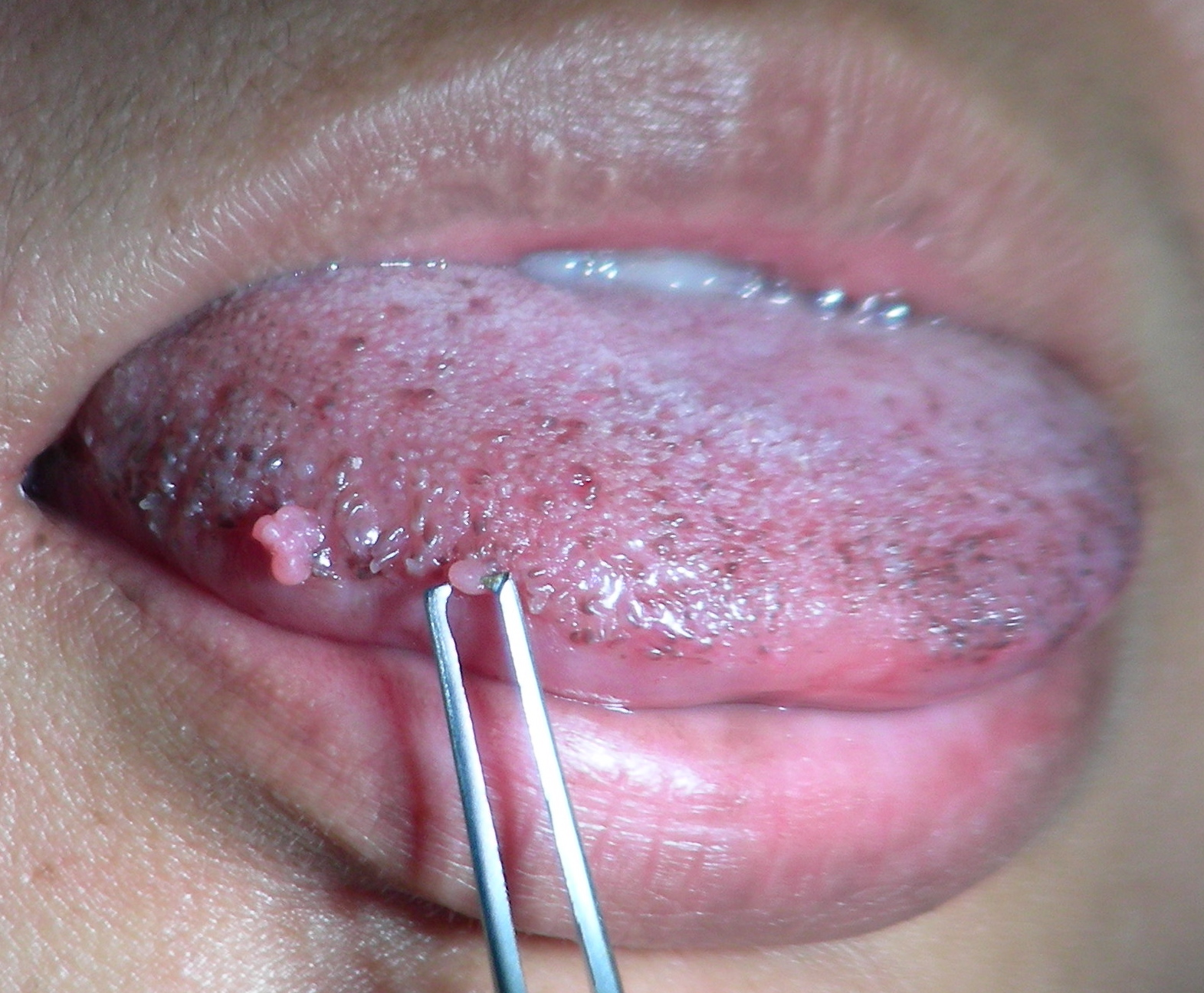 симптомы папилломы в ротовой полости