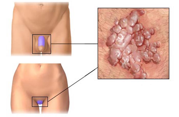 симптомы кондиломы