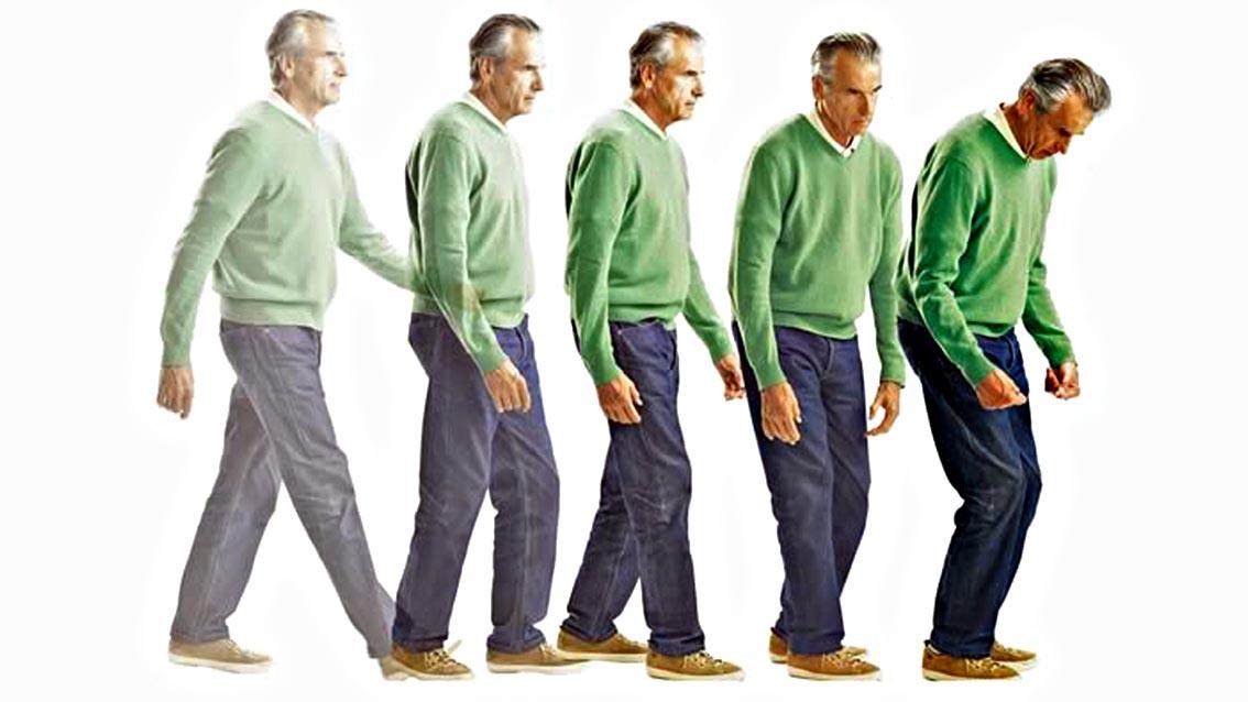 Симптомы и классификация болезни Паркинсона: Поза
