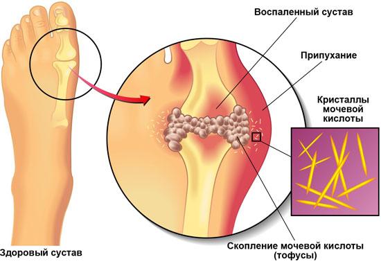 Подагра картинки - Ортопед.info