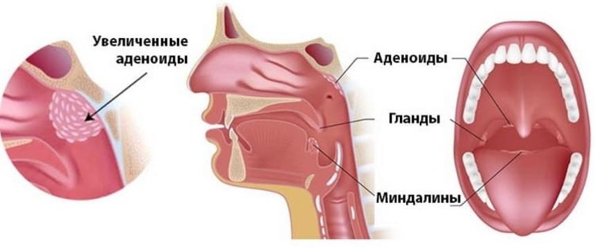Полипы в носу, или аденоиды